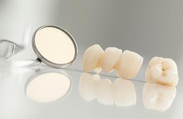 Crowns, Bridges & Implants