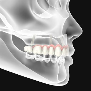 3D rendering dental background,implantat