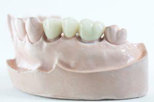 Dental Bridge is the fix partial denture. It's a porcelain fuse to metal type.