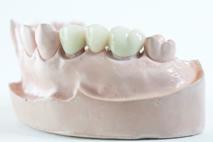 Dental Bridge is the fix partial denture. It's a porcelain fuse to metal type.