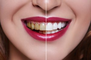 before and after teeth whitening close-up